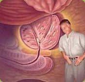 Аденома простати: симптоми, лікування, профілактика, діагностика, ускладнення