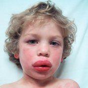Анафілактичний шок у дітей - лікування
