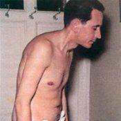Хвороба бехтерева - анкілозуючийспондиліт: симптоми, лікування
