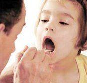 Хвороба дифтерія - збудник, профілактика, діагностика