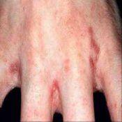 Короста, коростяві кліщі: симптоми, лікування, препарати