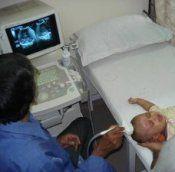 Дитячий церебральний параліч причини та діагностика дцп