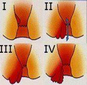 Геморой. 4 стадії виникнення геморою