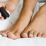 Грибок нігтів на ногах - лікування, препарати, симптоми