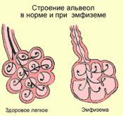 Емфізема легенів. Симптоми, лікування