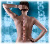 Як зберегти здоровий хребет?