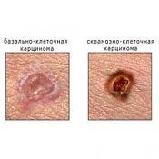 Карцинома: симптоми і лікування карциноми, причини