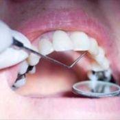 Загальне лікування карієсу зубів