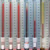 Загальний аналіз крові, шое норма, розшифровка