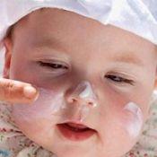 Дуже суха шкіра у немовляти