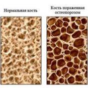 Остеопороз кісток: причини, лікування, профілактика