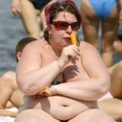 Ожиріння: симптоми і лікування. Ступеня ожиріння, класифікація
