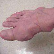Подагра: симптоми, причини, лікарські препарати, лікування медикаментами