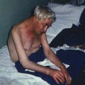 Серцева астма - симптоми, допомога, причини