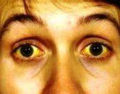Синдром жильбера: лікування, симптоми, наслідки