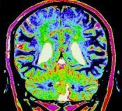 Судинна енцефалопатія головного мозку: лікування, симптоми