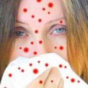 Вітрянка у дорослих: симптоми, лікування, ускладнення захворювання