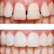 Вініри на криві передні зуби