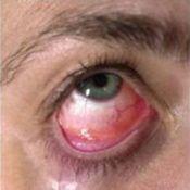 Вірусний кон`юнктивіт - симптоми, лікування