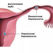 Позаматкова вагітність причини, перші симптоми, діагностування