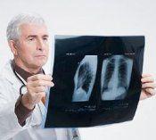 Запалення легенів лікування, симптоми